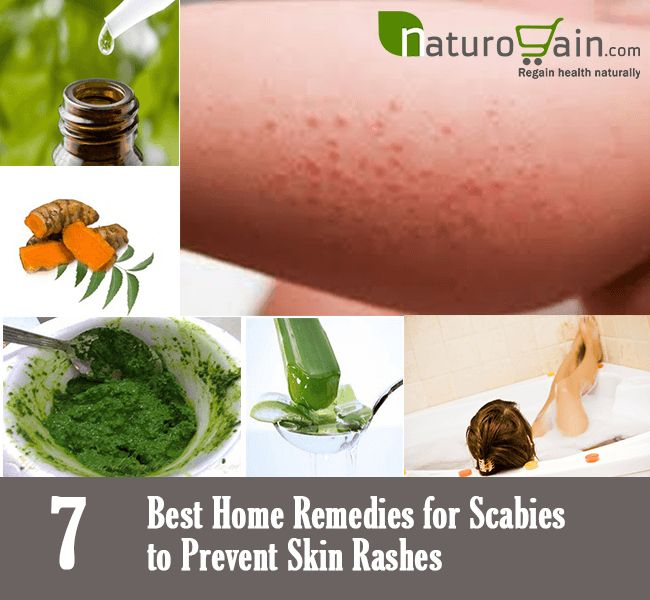 How To Get Rid Of Scabies Naturally?