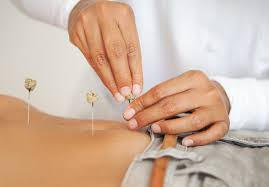 Is Acupuncture Safe During Pregnancy