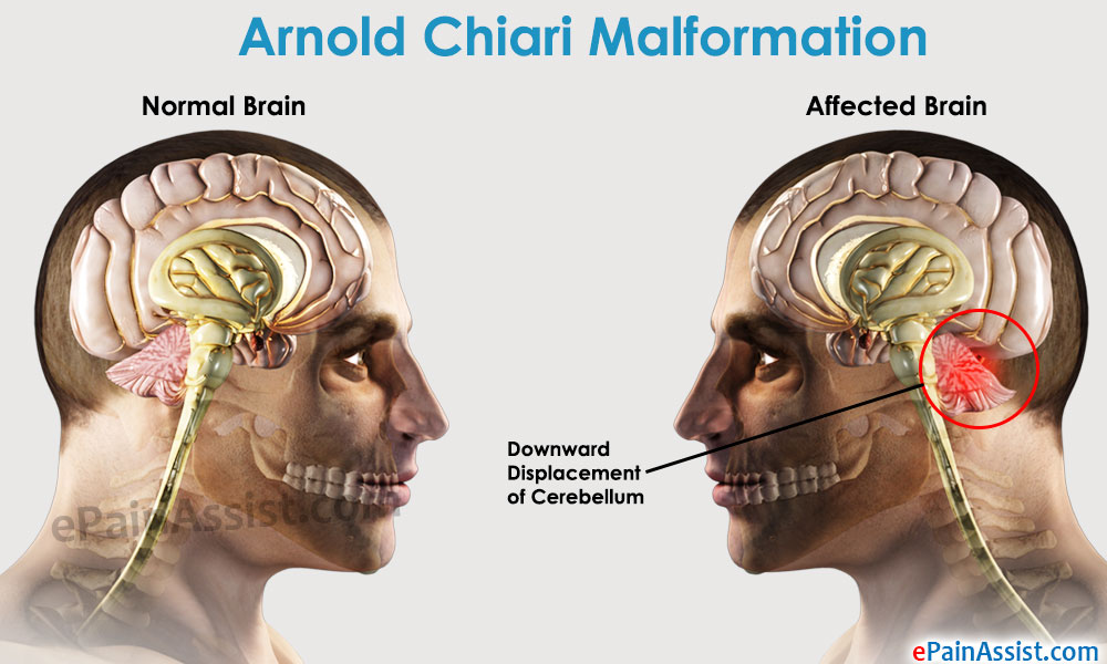 Natural Treatment For Arnold Chiari Malformation