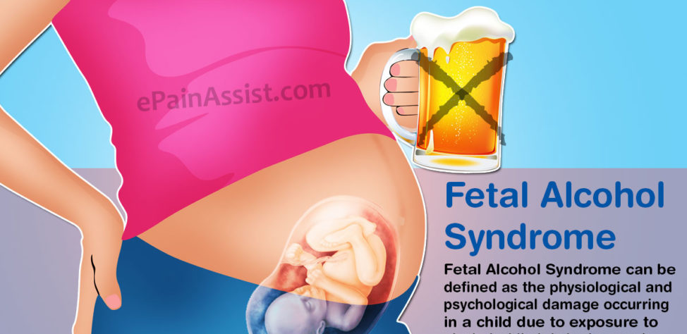 Can You Treat Fetal Alcohol Syndrome