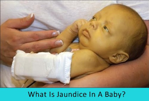 how to get rid of baby jaundice at home