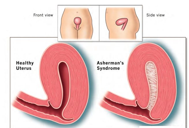 What Are The Symptoms Of Asherman's Syndrome